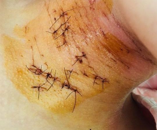女孩女生被衣服立案同学割伤未脱光案发现场初中什么护肤品用日本图片