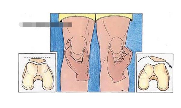 从膝关节的结构示意图来看,它是由三个关节构成,并通过各自的韧带